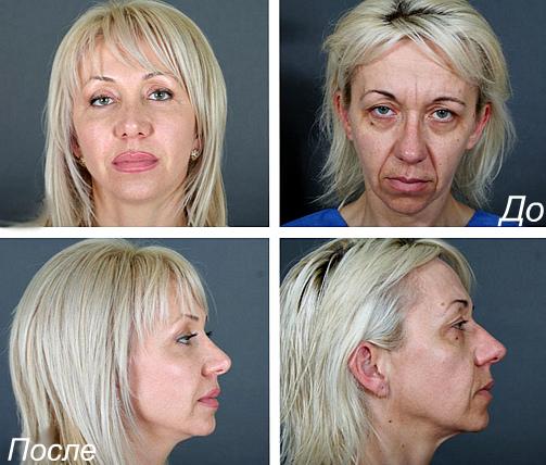 konturnaya podtyazhka lica
