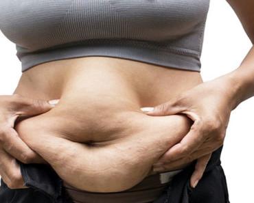 abdominoplastika - posledstviya, protivopokazaniya