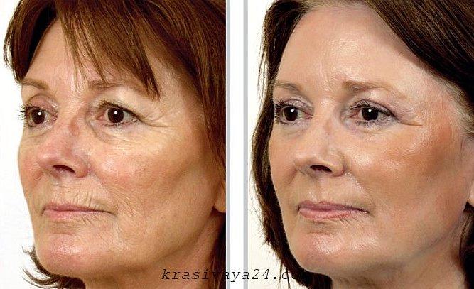 lazernoe omolozhenie lica - do i posle