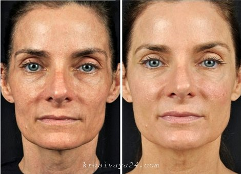 lazernoe omolozhenie lica