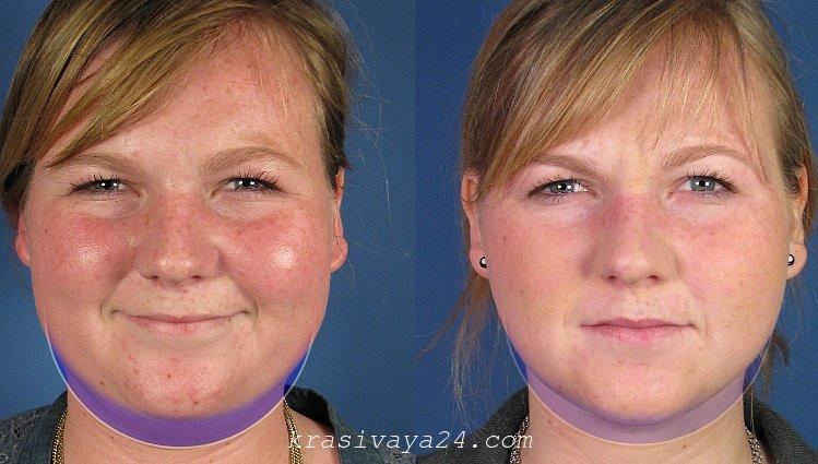 liposakciya lica - do i posle
