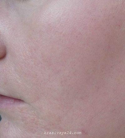 lazernaya shlifovka kozhi lica