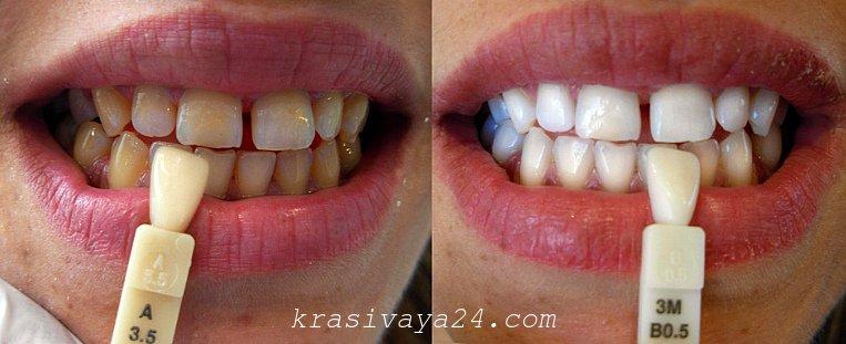 Отбеливание зубов в Краснодаре - цены, фото до и после