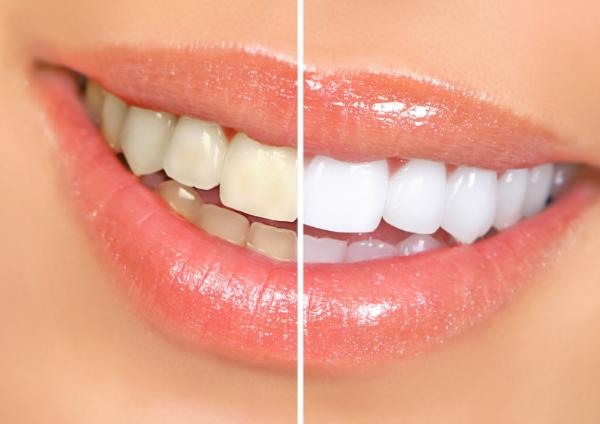 lazernoe otbelivanie zubov