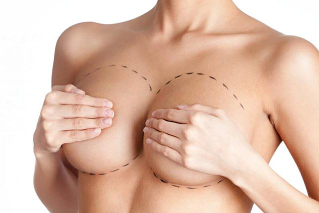 redukcionnaya-mammoplastika