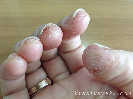 Аллергия на гель лак коди