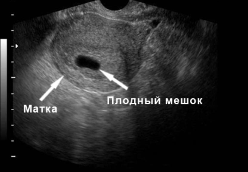 две полоски на тесте только беременность означает