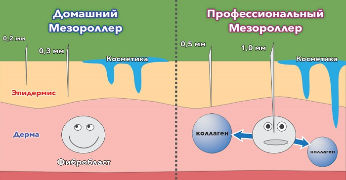 Отличия домашнего и профессионального мезороллера