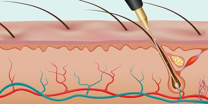 как проходит электроэпиляция волос на лице