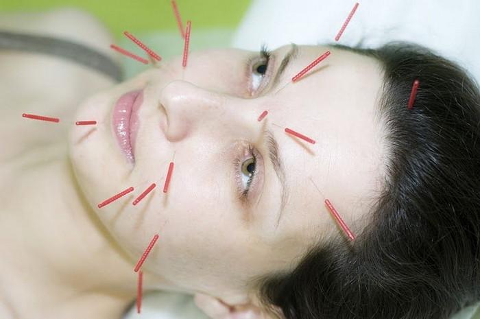 иглоукалывание на лице косметология