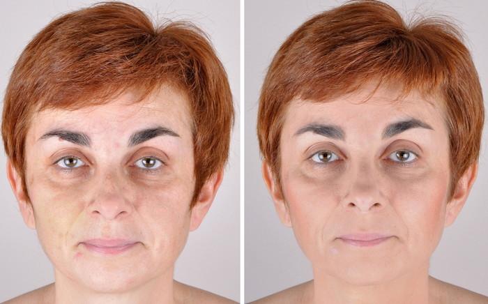 иглорефлексотерапия лица фото до и после