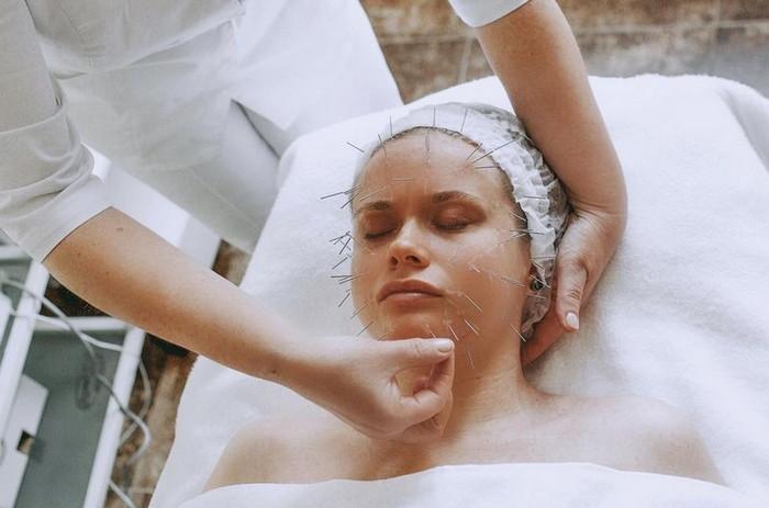 иглорефлексотерапия на лице