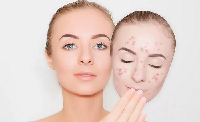 атравматическая чистка лица при угревой сыпи